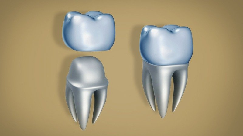 dental crown | tooth cap | dental cap