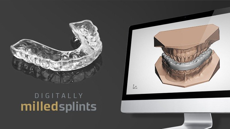 Digitally Milled Splints
