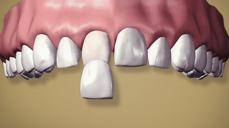 porcelain veneers | cosmetic veneers | dental veneers | dental porcelain laminates