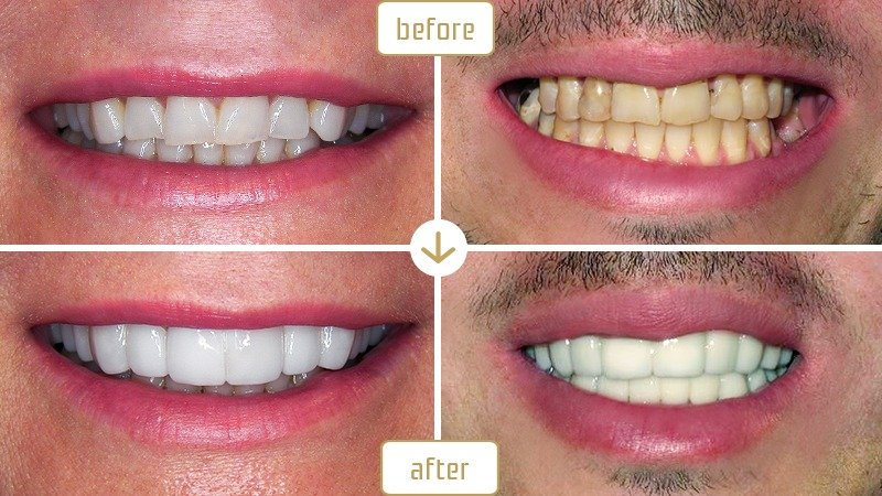 Smiles 2 Go | Before and After Picture