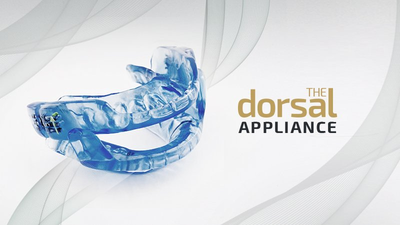 the dorsal appliance | anti-snoring device